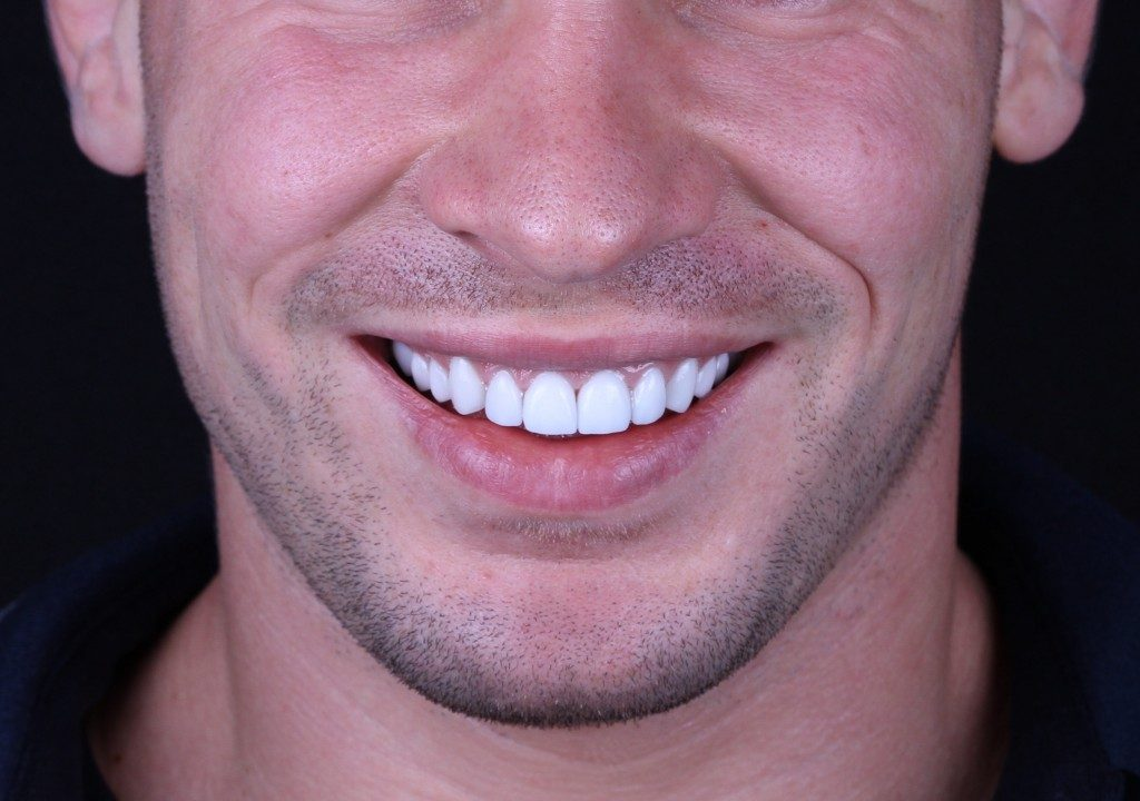 Man smiling and with veneers