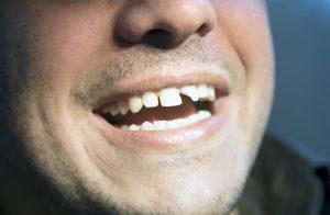 Man with broken front teeth