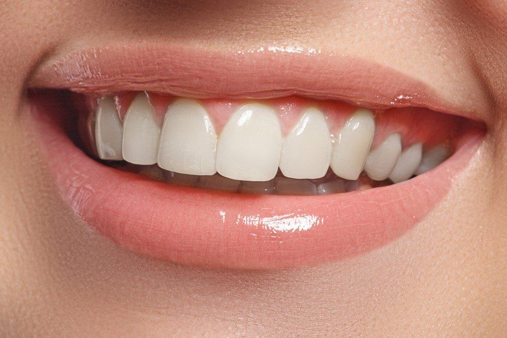 Methods to attain straight teeth