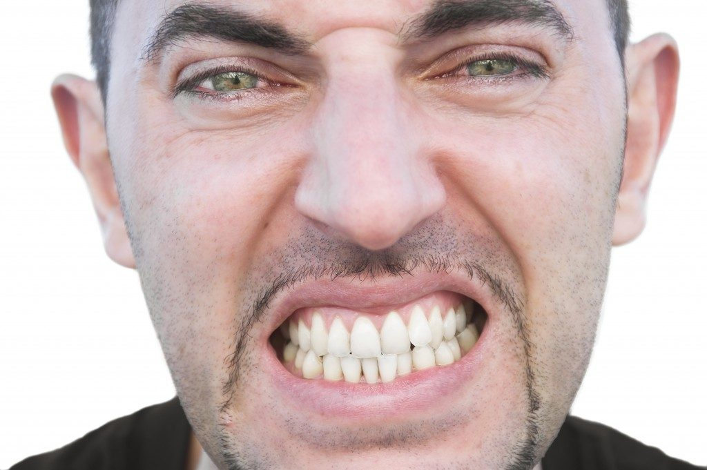 Man showing his misaligned teeth