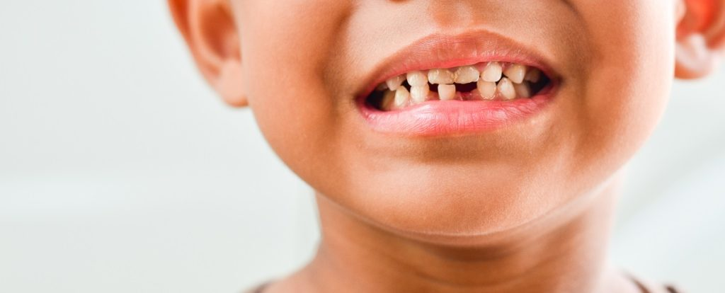 common teeth problems in children
